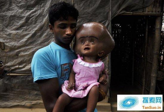 印度女童患脑积水比外星人更像外星人