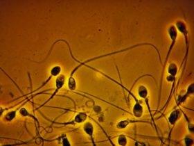 法媒:研究称空气污染可使精子变小并出现异形